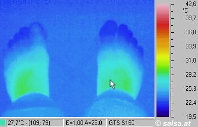 des pieds - (Infrarouge pictures / thermography of a foot